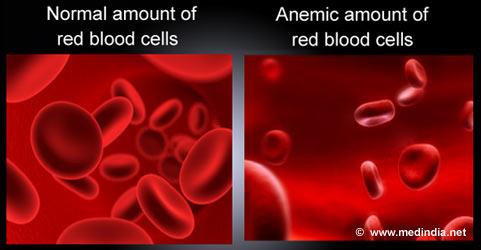 anemia-low-haemoglobin
